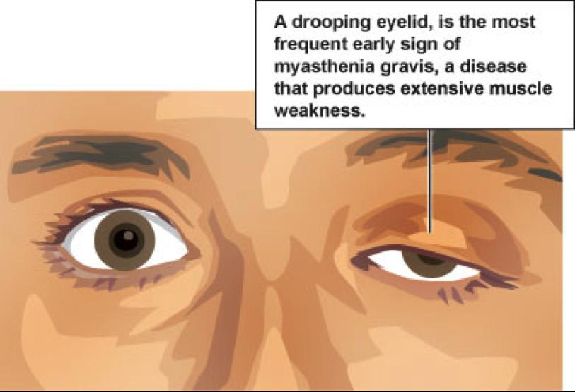 Exercise and Myasthenia Gravis